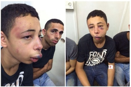 Des policiers israéliens tabassent un adolescent citoyen américain croyant qu'il est palestinien